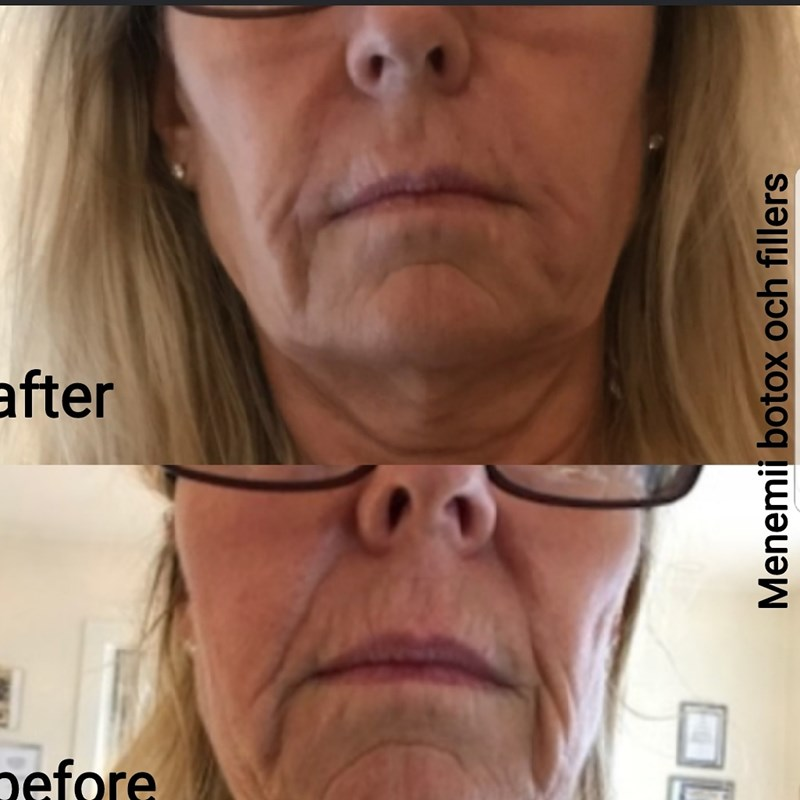 Menemii Botox-Fillers AB , Linköping, Linköping – Bokadirekt